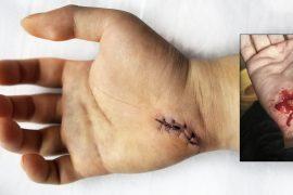 Self-Surgery in The Field For Survival /// Vinjatek
